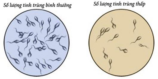số lượng tinh trùng bình thường và thấp