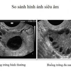 hình ảnh siêu âm buồng trứng đa nang