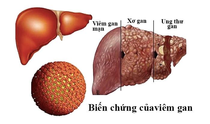Biến chứng của viêm gan