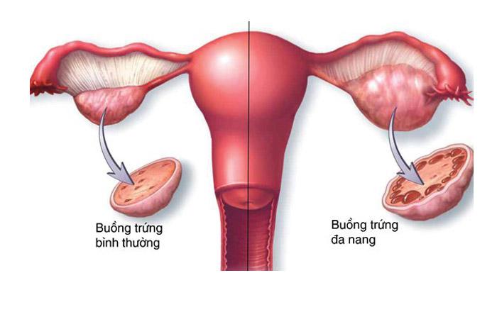 hội chứng buồng trứng đa nang ở phụ nữ